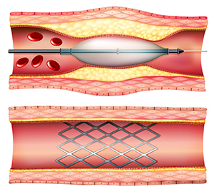 Diagram of a stent in place