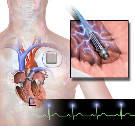 What is a cardiac defibrillator?