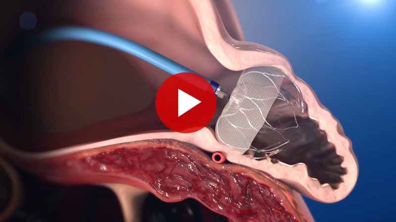 Cardiac Watchman Illustration with Video Link
