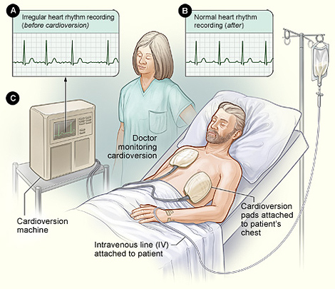 Illustration of the cardioversion procedure.